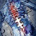 Cirugías de Columna Complejas