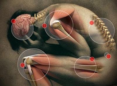 alivio para el dolor articular