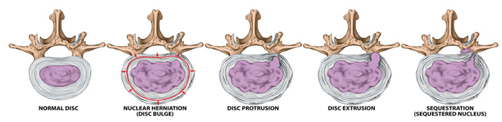 stages of a herniated disc