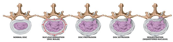herniated disc symptoms treatment spine orthopedic center