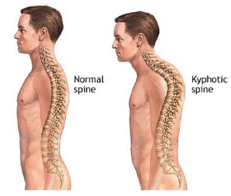 kyphosis treatment