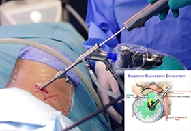 Minimally Invasive Spine Surgery in Florida