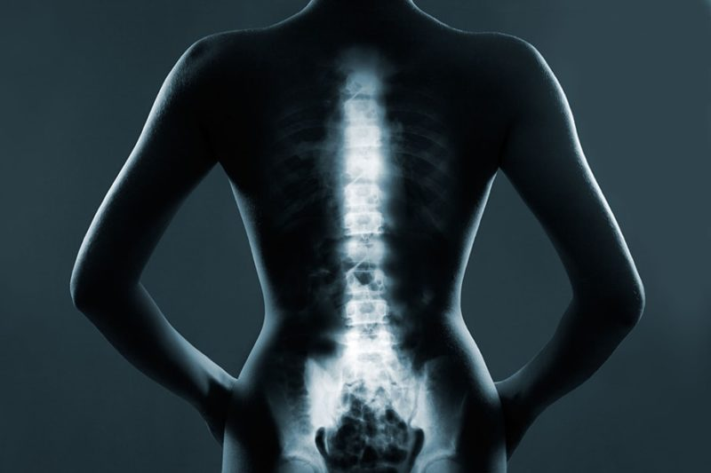how to prepare for spinal surgery
