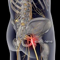 sciatic nere pain
