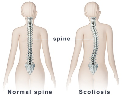 causas y síntomas de la escoliosis