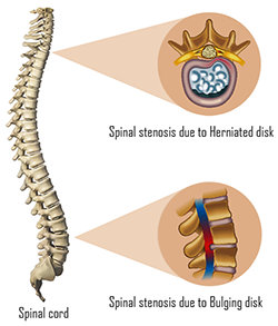 spinal stenosis causes