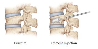 vetebroplasty procedure