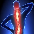 back pain condition