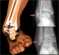 Ankle Fracture Repair Treatment & Surgery | Spine & Orthopedic Center