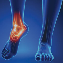best podiatrist in south florida