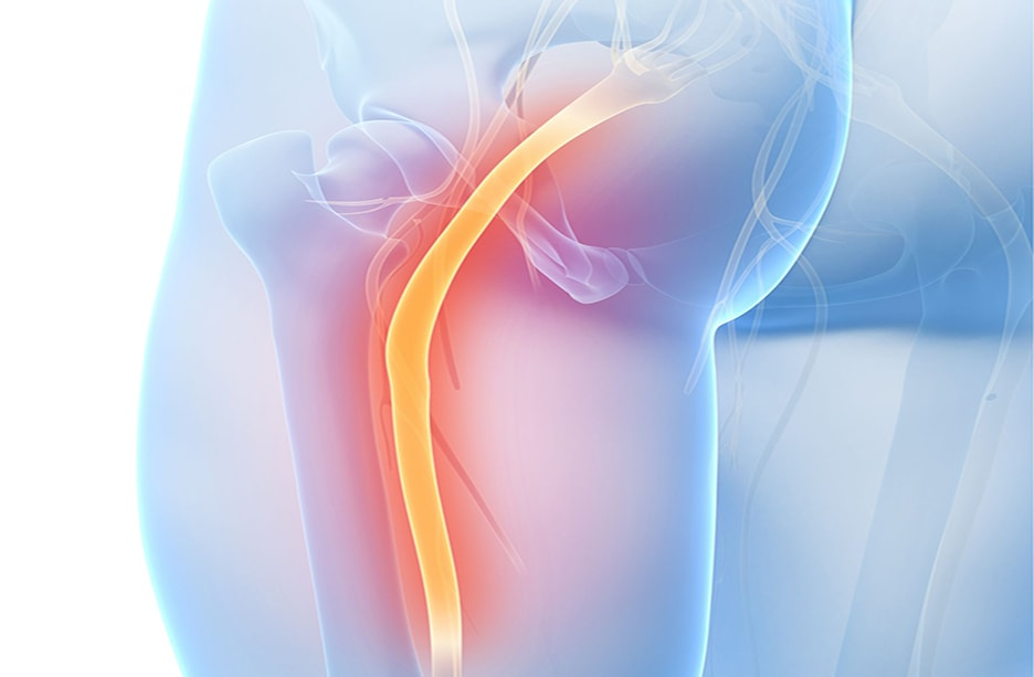 5 things to know about sciatica