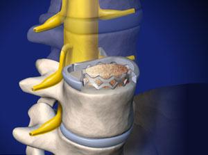 ALIF: Anterior Lumbar Interbody Fusion