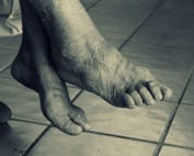feet problems that come with aging