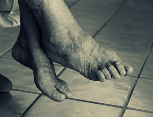 Foot Problems That Come With Aging