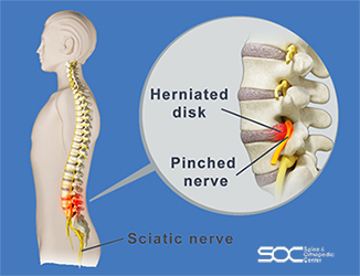 pinched nerve treatment in broward and palm beach
