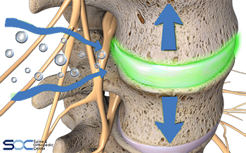 spinal decompression in broward and plam beach