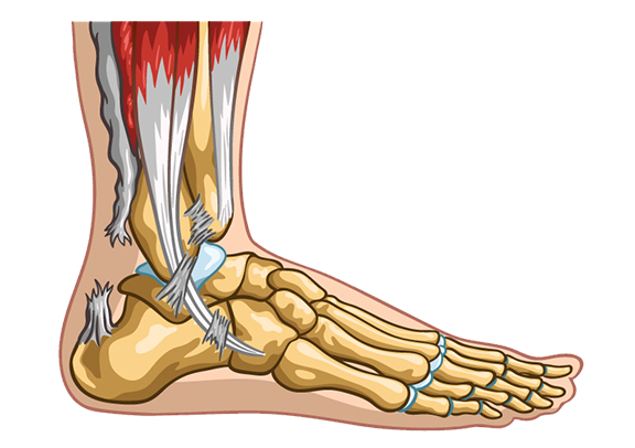 Achilles Tendon rupture treatment in south florida