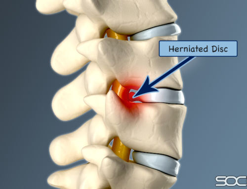 Common Minimally Invasive Lumbar Herniated Disc Procedures