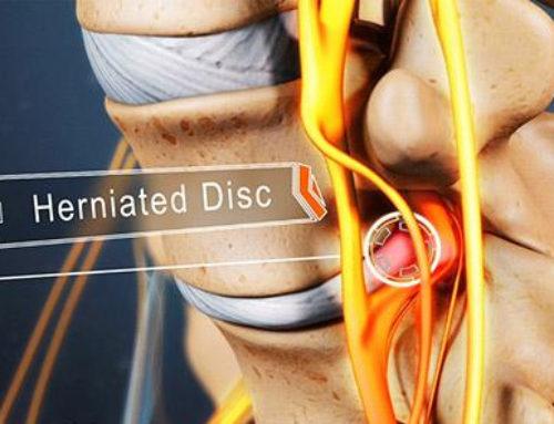 Common Minimally Invasive Lumbar Herniated Disc Procedures