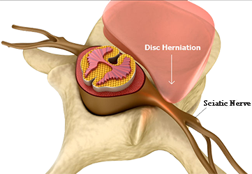 sciatica caused by herniated disc