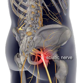 sciatica treatment in Broward & Palm Beach