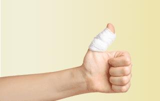 jammed-finger